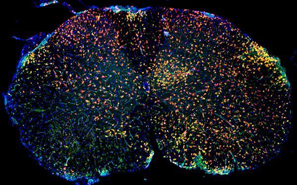 Immunfluoreszenz von entzündlich verändertem Rückenmark mit roten Mikrogliazellen und grünen aus dem Blut eingewanderten Makrophagen.   Bildquelle: Universitätsklinikum Freiburg